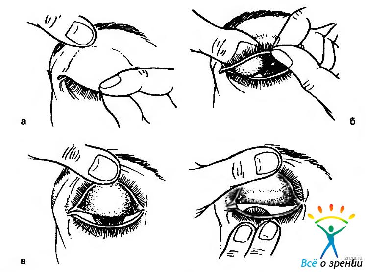 """Как подтянуть обвисшие веки без операции в домашних условиях - """"здоровое око"""""""