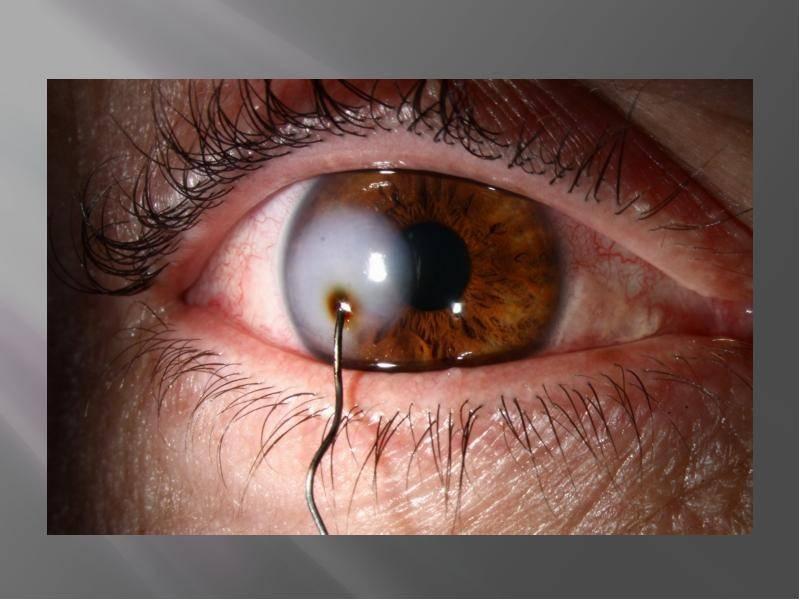 Мутно видит половина глаза после удаления металической стружки