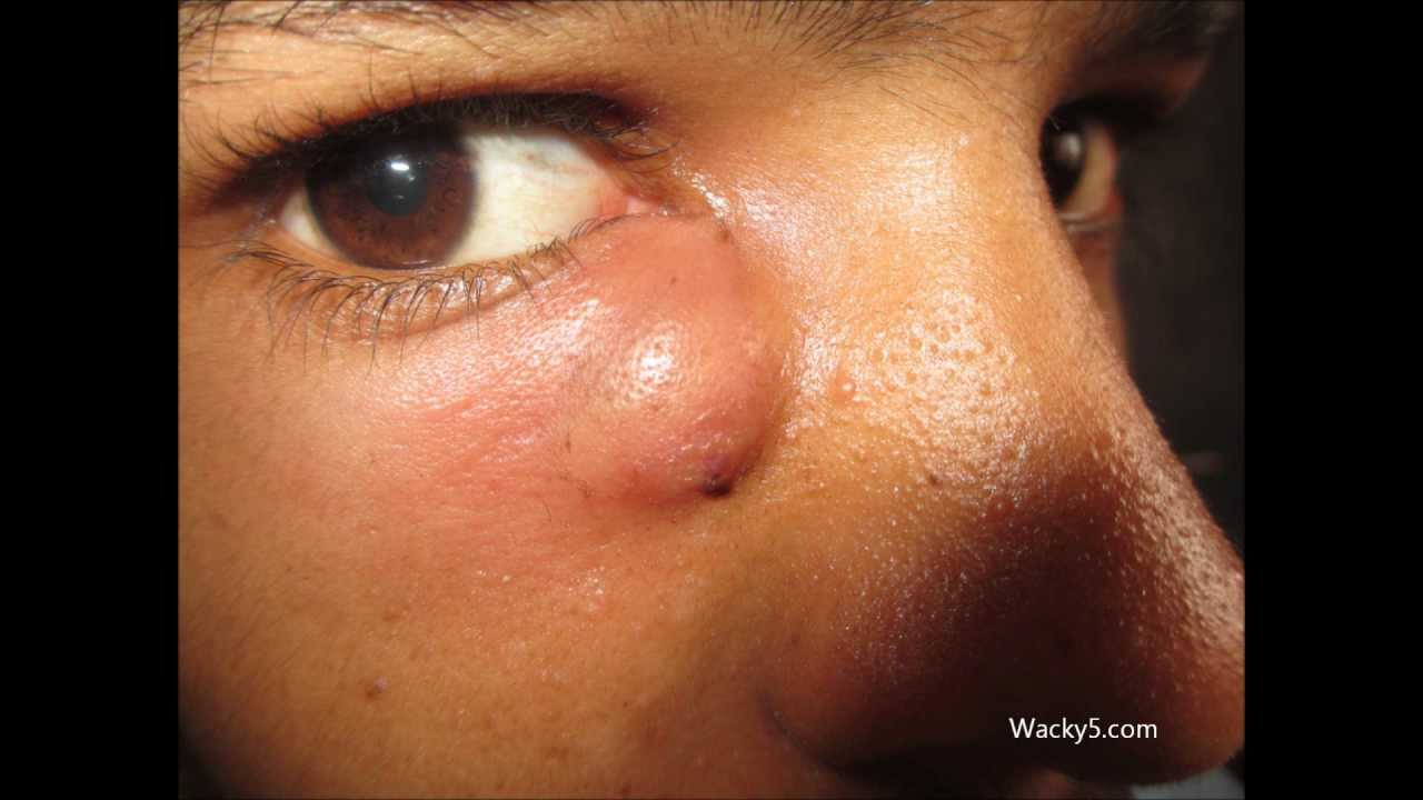 Абсцесс кожи - лечение, причины, симптомы, диагностика и фото