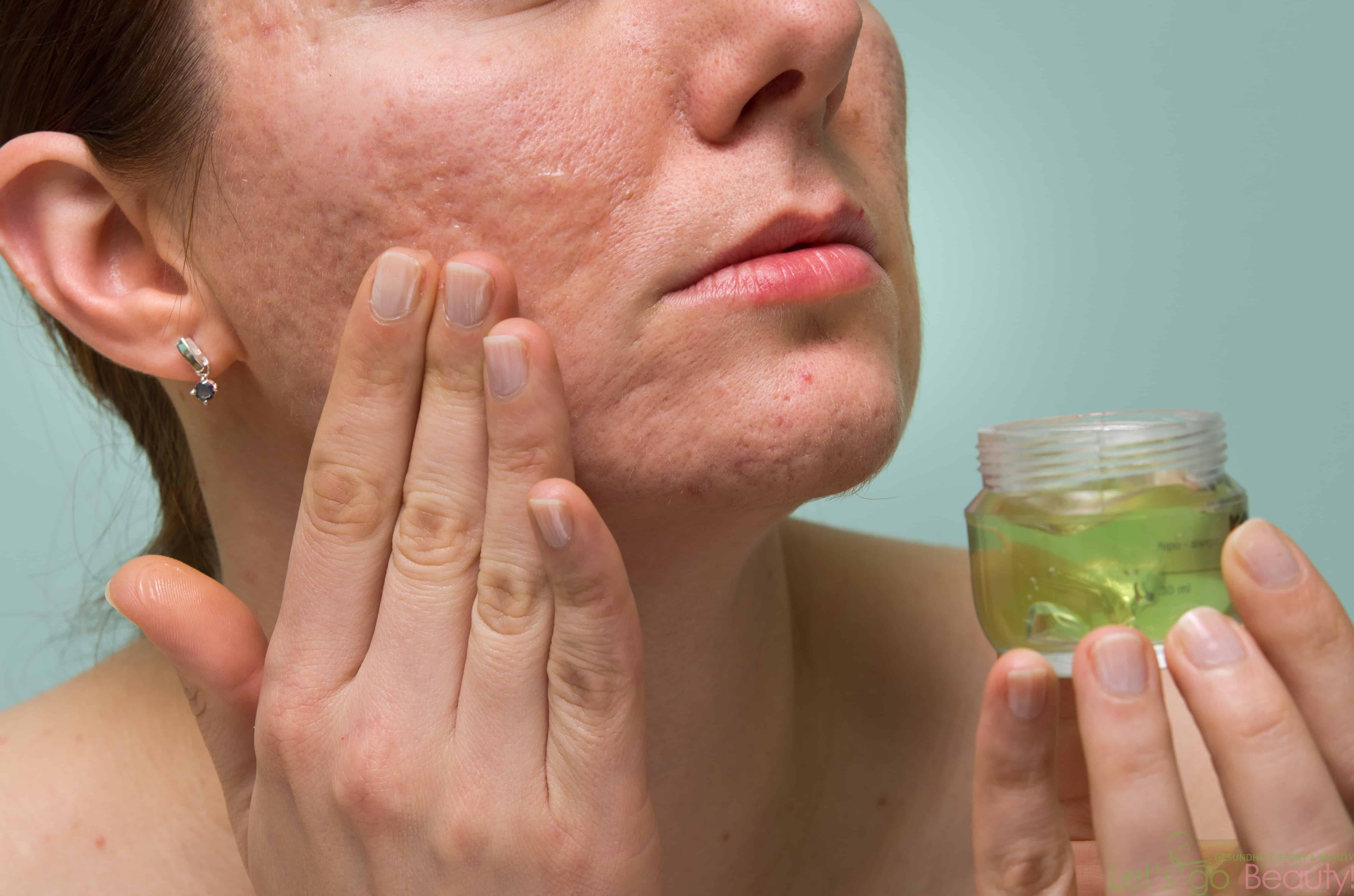 От чего помогает уринотерапия? это польза или вред, панацея или бред?