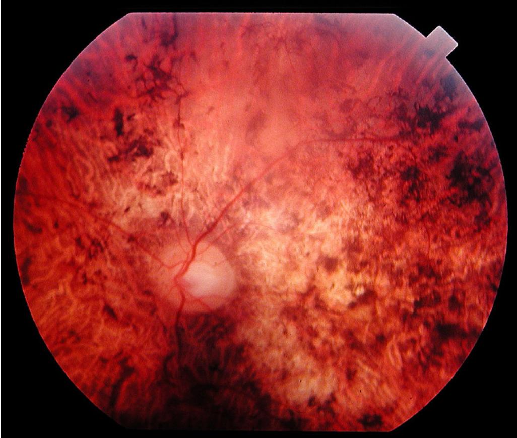 Что такое амавроз глаза: симптомы и лечение oculistic.ru что такое амавроз глаза: симптомы и лечение