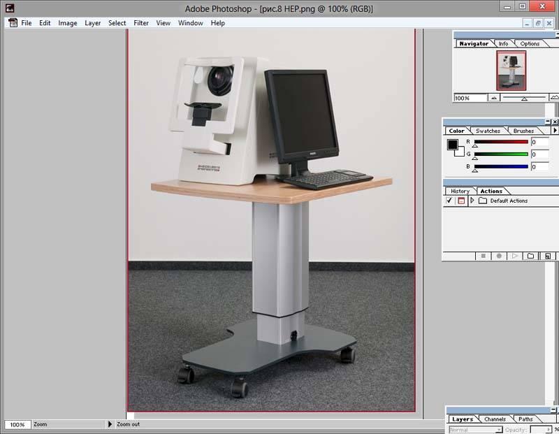 Периметрия: что это такое в офтальмологии, компьютерная, схема поля зрения в норме, периметр ферстера, статическая проверка, сферопериметр
