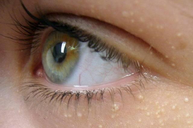 5 лучших способов избавиться от милиумов на лице