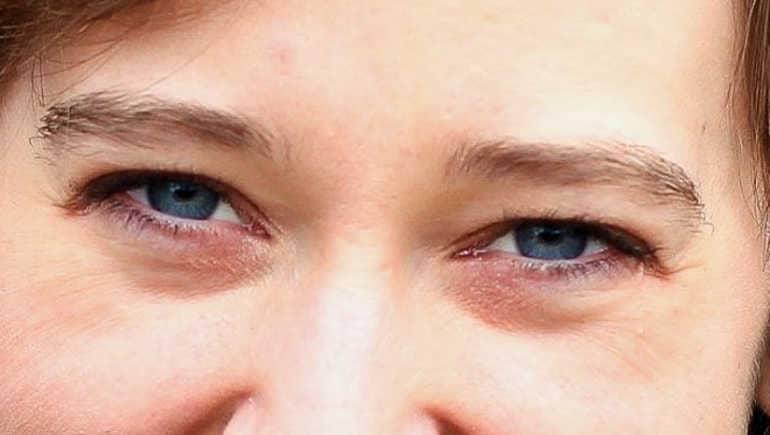 Причины появления черных кругов под глазами у человека