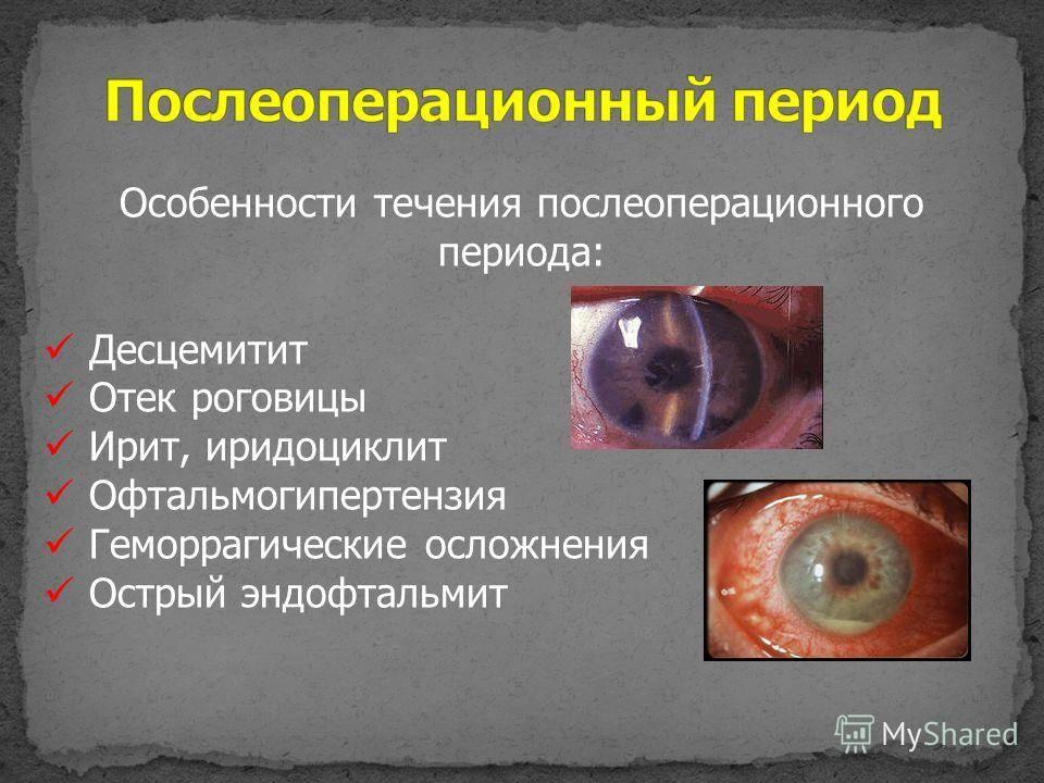 Внутриглазное давление (офтальмотонус): причины, симптомы, как снизить и как повысить глазное давление