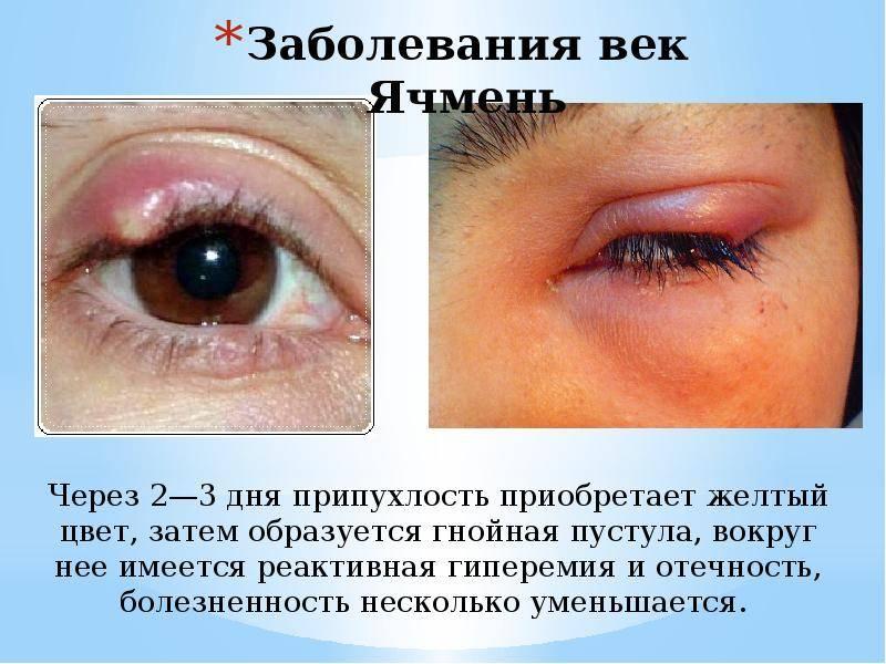 Распространенные инфекции глаз: вирусные, бактериальные, грибковые
