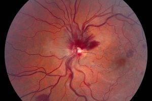 """Тромбоз центральной вены сетчатки - """"здоровое око"""""""