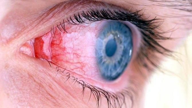 Воспаление глаз при переохлаждении - лучший врач