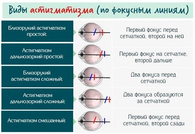2 в 1 – близорукость и астигматизм сразу.как бороться?