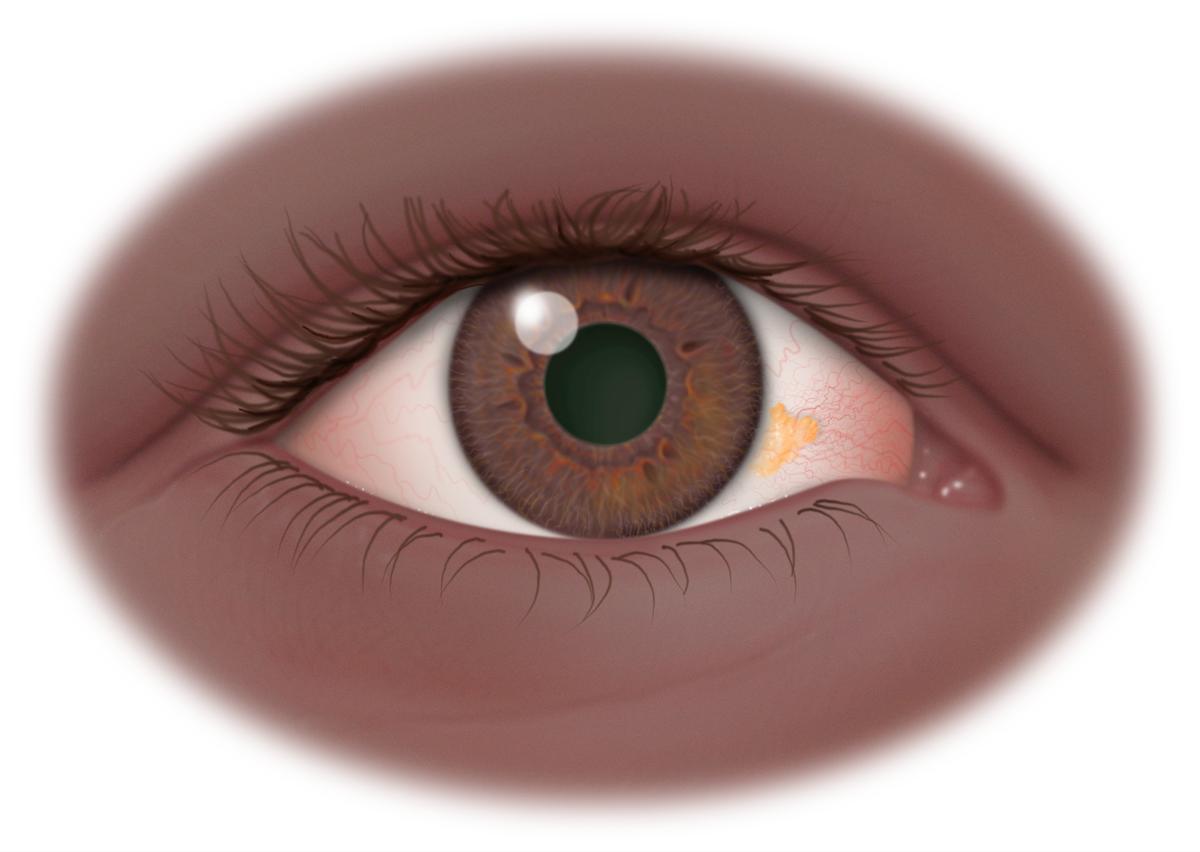 Желтое пятно в глазу – у человека на глазном яблоке или зрачках