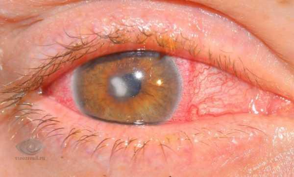 Эрозия роговицы глаза: причины, симптомы, лечение oculistic.ru эрозия роговицы глаза: причины, симптомы, лечение