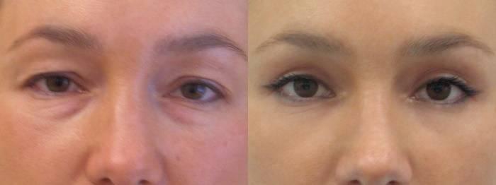 Блефаропластика нижних век: как делают пластику под глазами, фото
