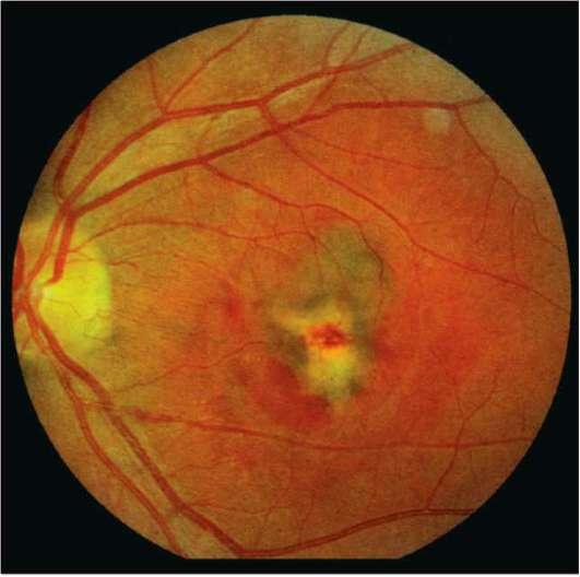 Цсхрп – лечение глаза при центральной серозной хориоретинопатии
