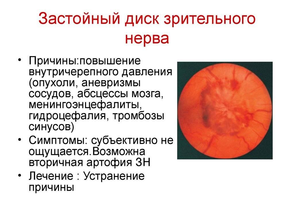 Офтальмология: застойный диск зрительного нерва