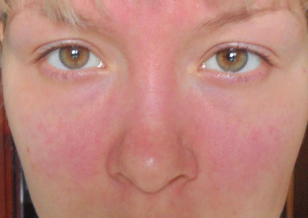 Аллергия у ребенка - причины, лечение и 140 фото лучших препаратов для детей
