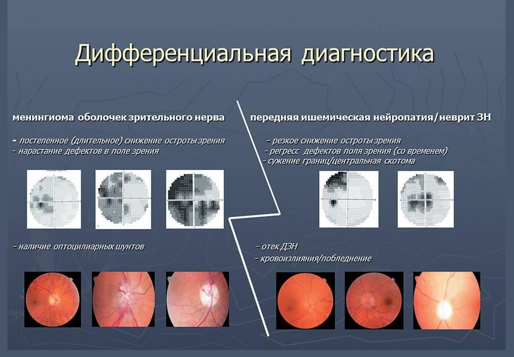 Атрофия зрительного нерва (оптическая нейропатия), методы лечения