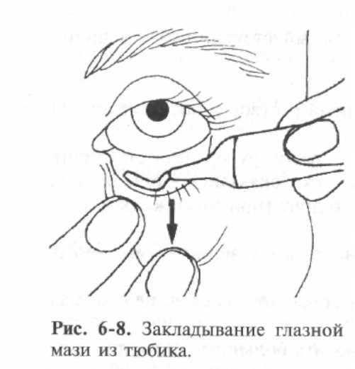 Куда закапывать глазные капли. аллергия от глазных капель. глазные капли от усталости