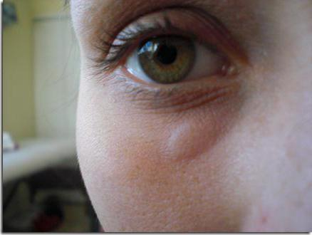 Отек глаз при аллергии: ? лечение, что делать если чешутся и опухают?