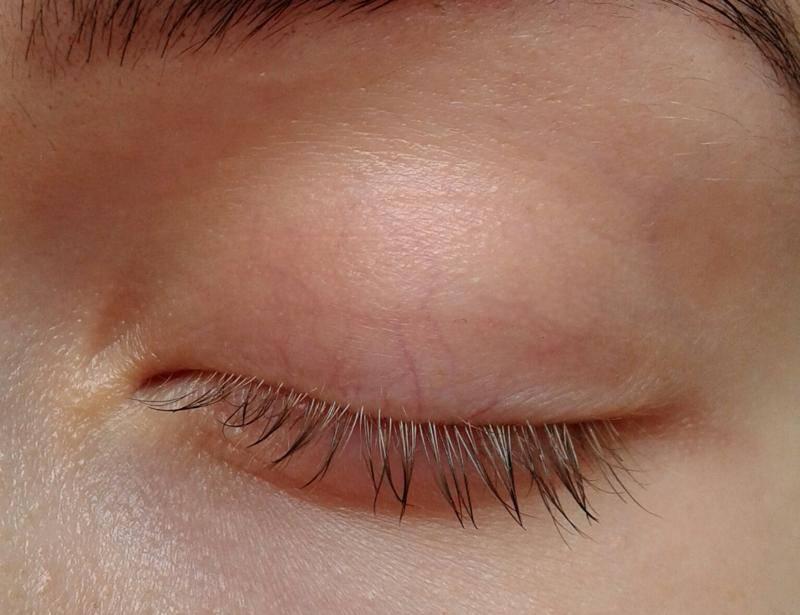 """Лопнул сосуд в глазу у ребенка: причины, симптомы и методы лечения - """"здоровое око"""""""