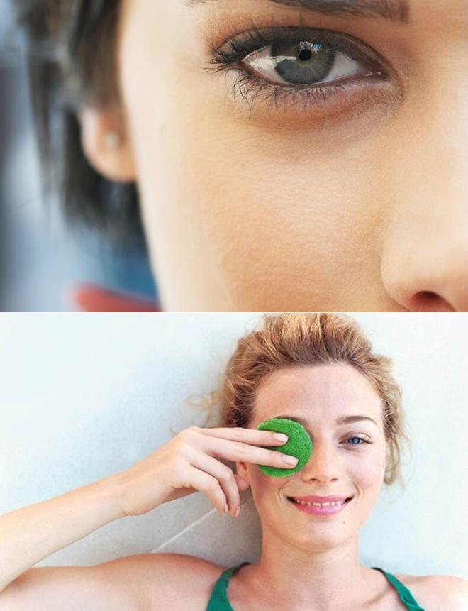 Как быстро снять отек с глаз?