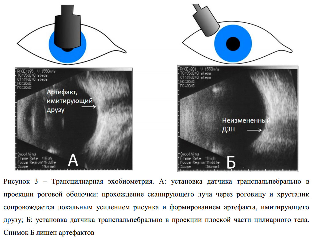 Эхобиометрия глаза: что это такое и для чего она нужна