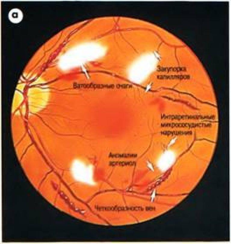 Полнокровные вены глазного дна у ребенка