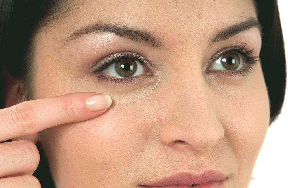 Белые точки под глазами: причины, как убрать их самим?