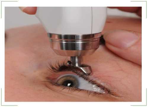 Тонометрия: что это такое, офтальмотонометрия глаза, показатели и норма у взрослого по маклакову, бесконтактная пневмотонометрия в медицине