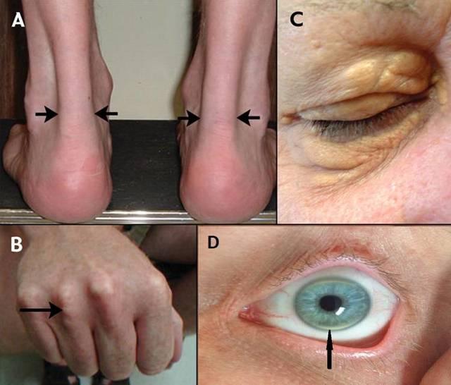 Мадароз: симптомы, диагностика и лечение. клиники. консультация офтальмолога.