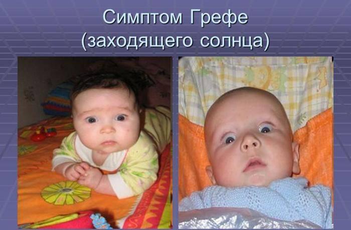 Новорожденный закатывает глазки: норма или патология?