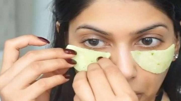 Синяки под глазами – причины и лечение , как убрать в домашних условиях!
