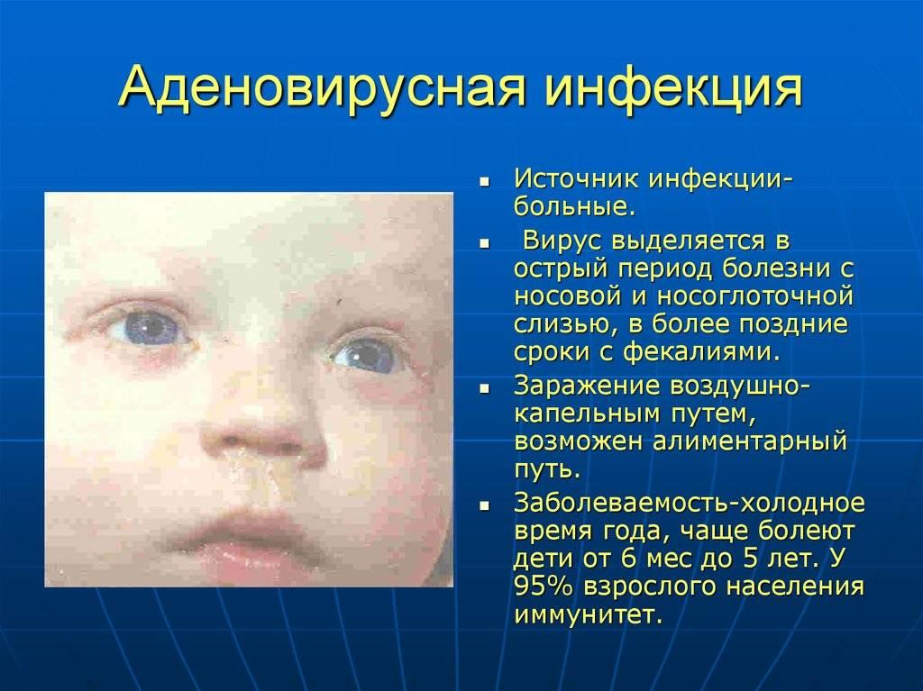 Аденовирусный конъюнктивит : причины, симптомы, диагностика, лечение | компетентно о здоровье на ilive