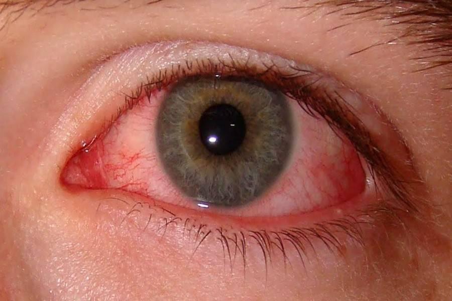 Тревожный симптом, характерный для многих заболеваний! эписклерит: что это такое?