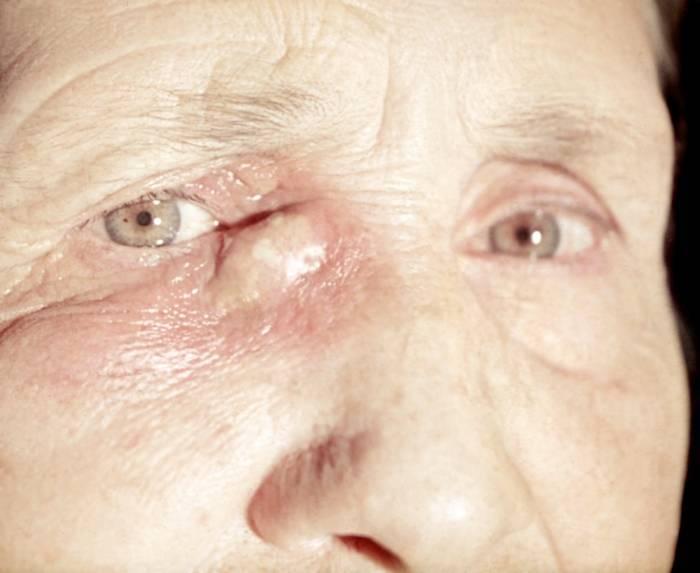 Рак глаза у детей фото симптомы лечение последствия