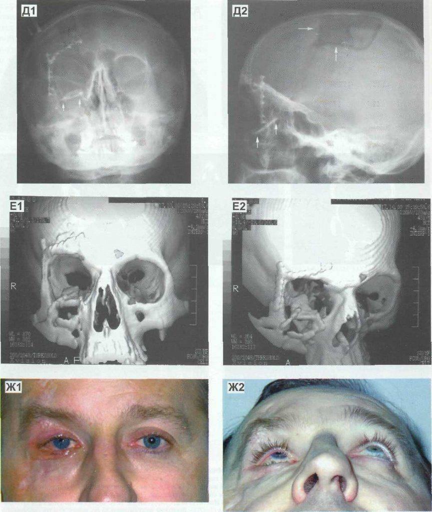 Перелом скуловой кости: последствия, симптомы, лечение, сроки заживления