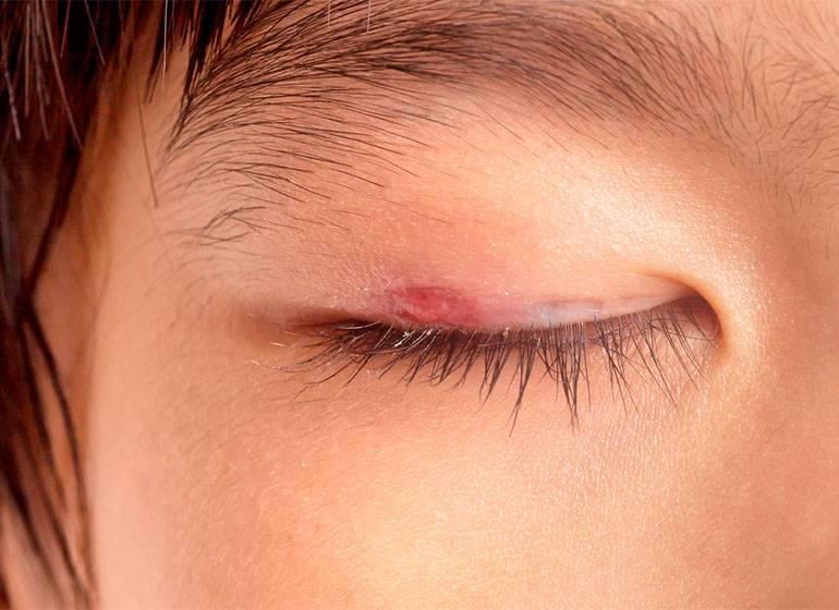 Ячмень на глазу – причины, симптомы и лечение болезни (фото)