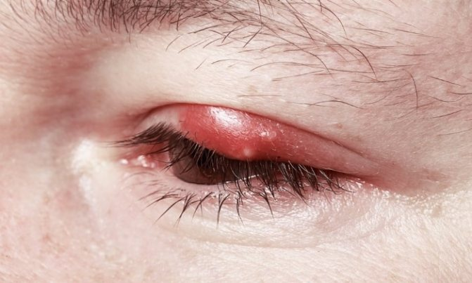 Можно ли выдавить ячмень на глазу, как вскрыть, что делать, если не созревает и не прорывается, вскрытие гнойника, когда он созрел