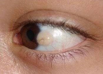 Киста на веке глаза - причины, виды, лечение, последствия