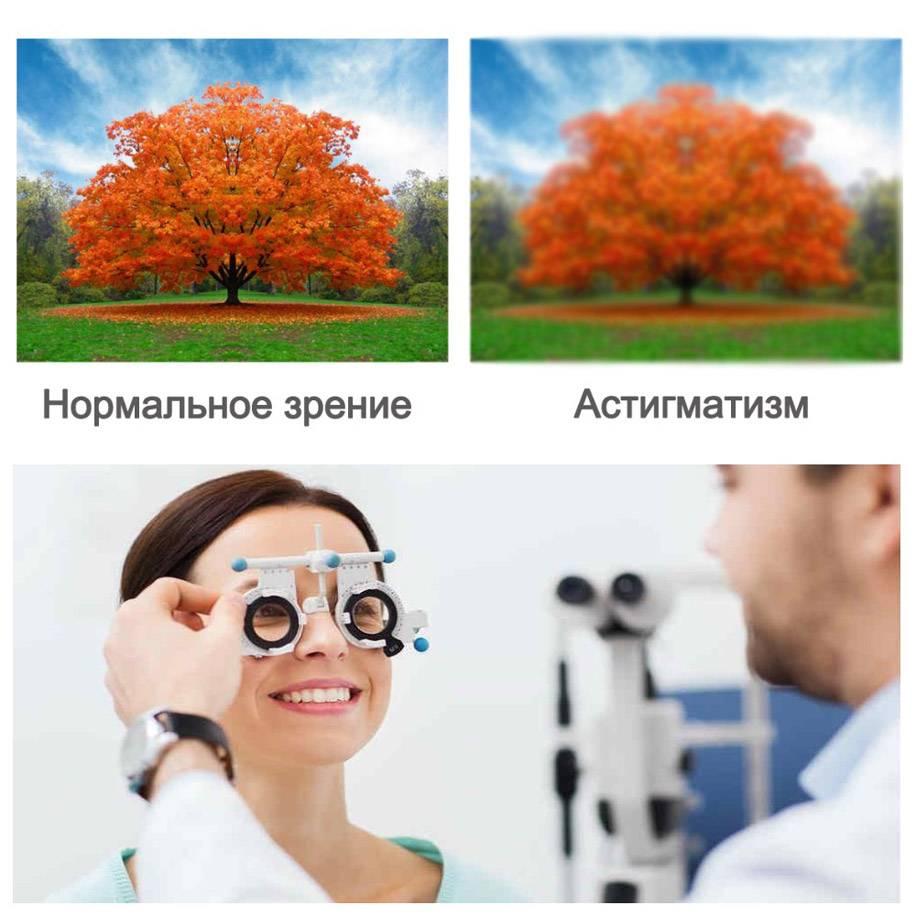 Периферическое зрение виды и причины нарушений