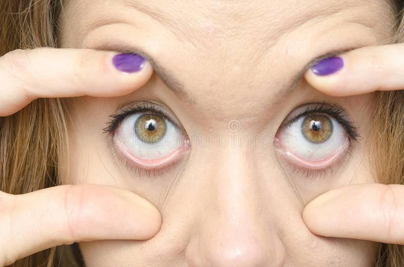 Что делать, если ткнули в глаз пальцем? - онлайн медик