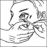 Закапывание капель в глаза и промывание глаз.