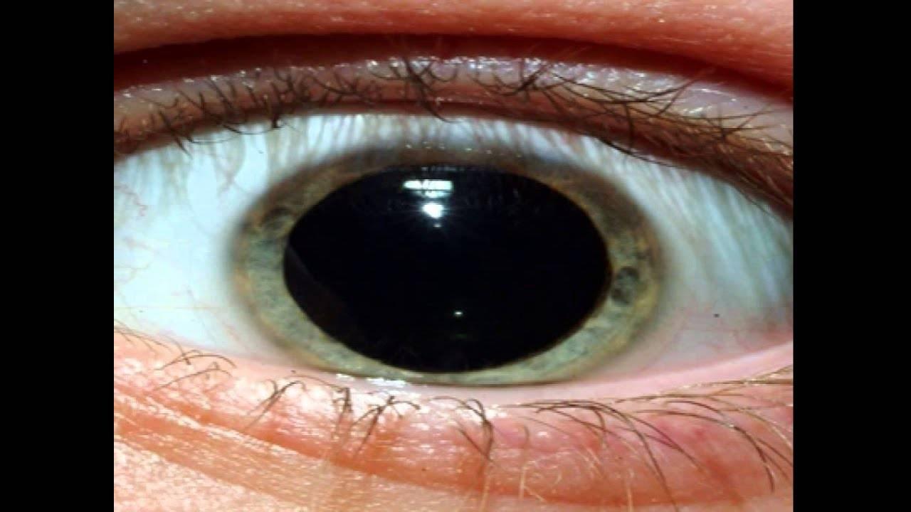 Суженные зрачки : причины и лечение | компетентно о здоровье на ilive