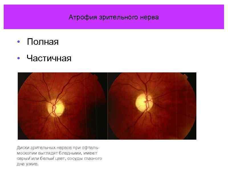 Атрофия зрительного нерва | мнтк «микрохирургия глаза» им. акад. с.н. федорова