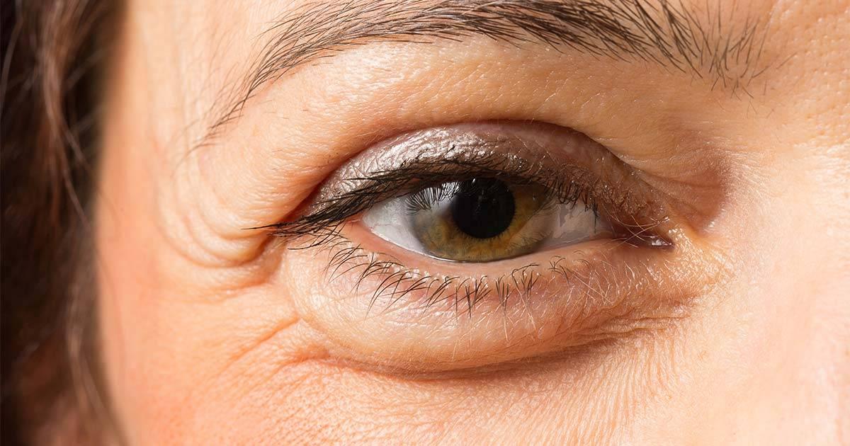Отекают верхние веки глаз: причины, симптомы, диагностика и лечение