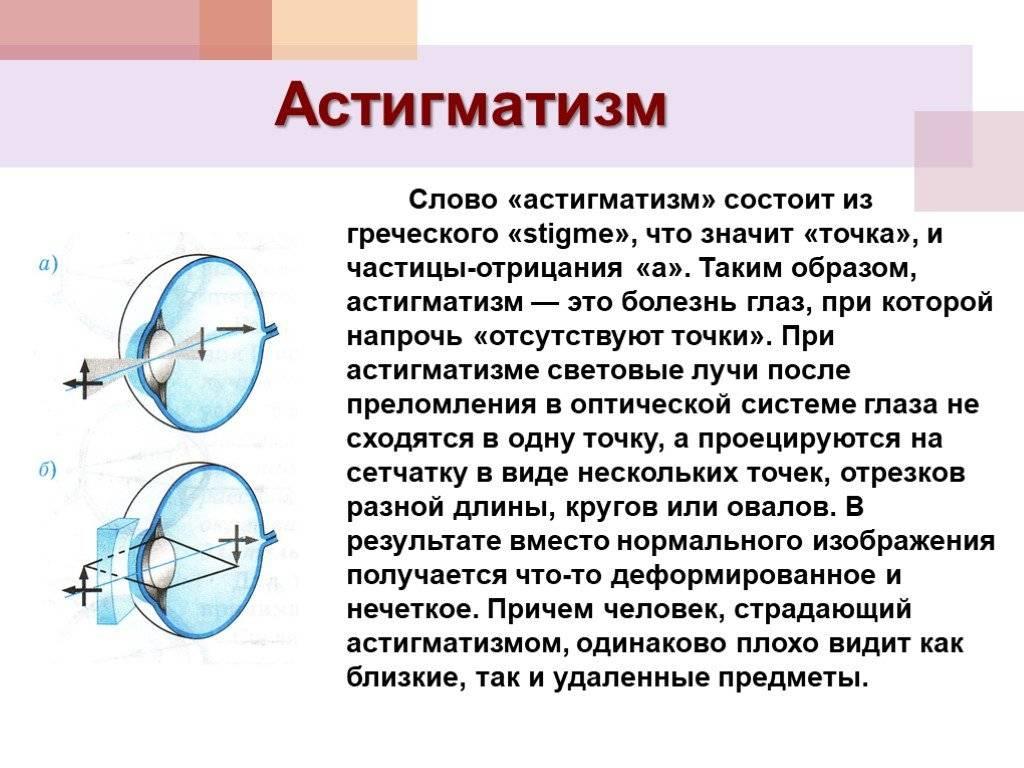 Астигматизм: фото, причины и лечение. как лечить астигматизм