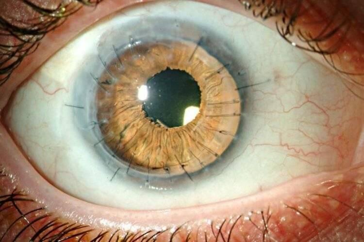Кератопатия глаза: лечение, причины, симптомы и профилактика