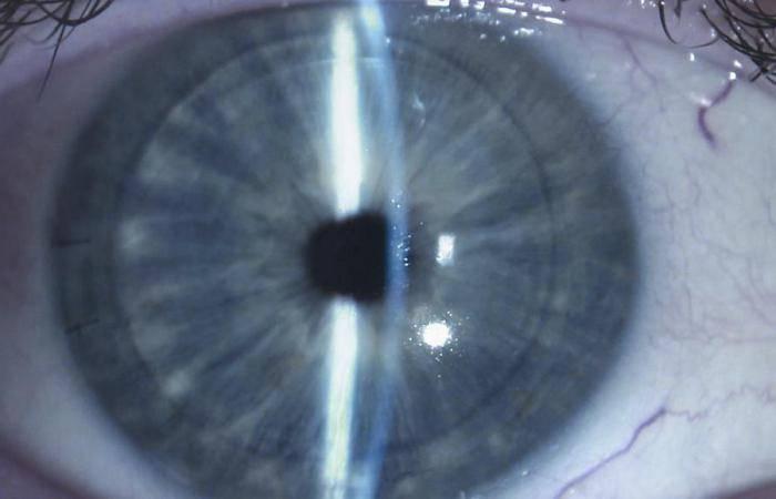 Пятно фукса: синдром гетерохромии глаз в офтальмологии