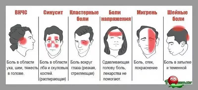Болит левый глаз и левая сторона головы, причины и лечение