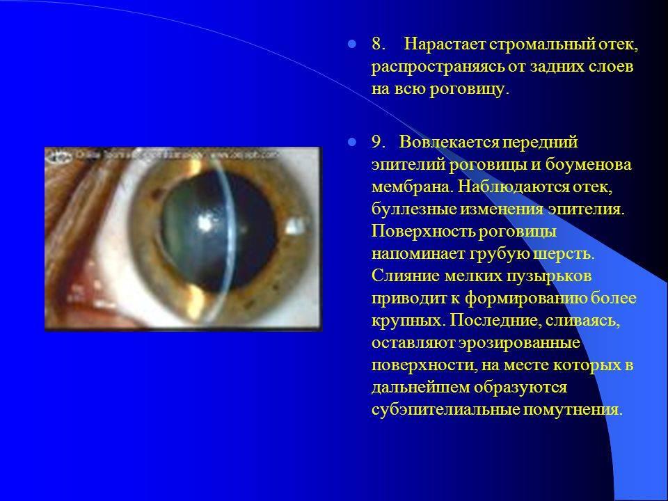 """Дистрофия роговицы глаза: причины и симптомы - """"здоровое око"""""""
