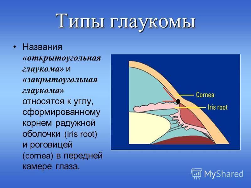 Глаукома открытоугольная и закрытоугольная: отличия в симптомах и лечении патологии